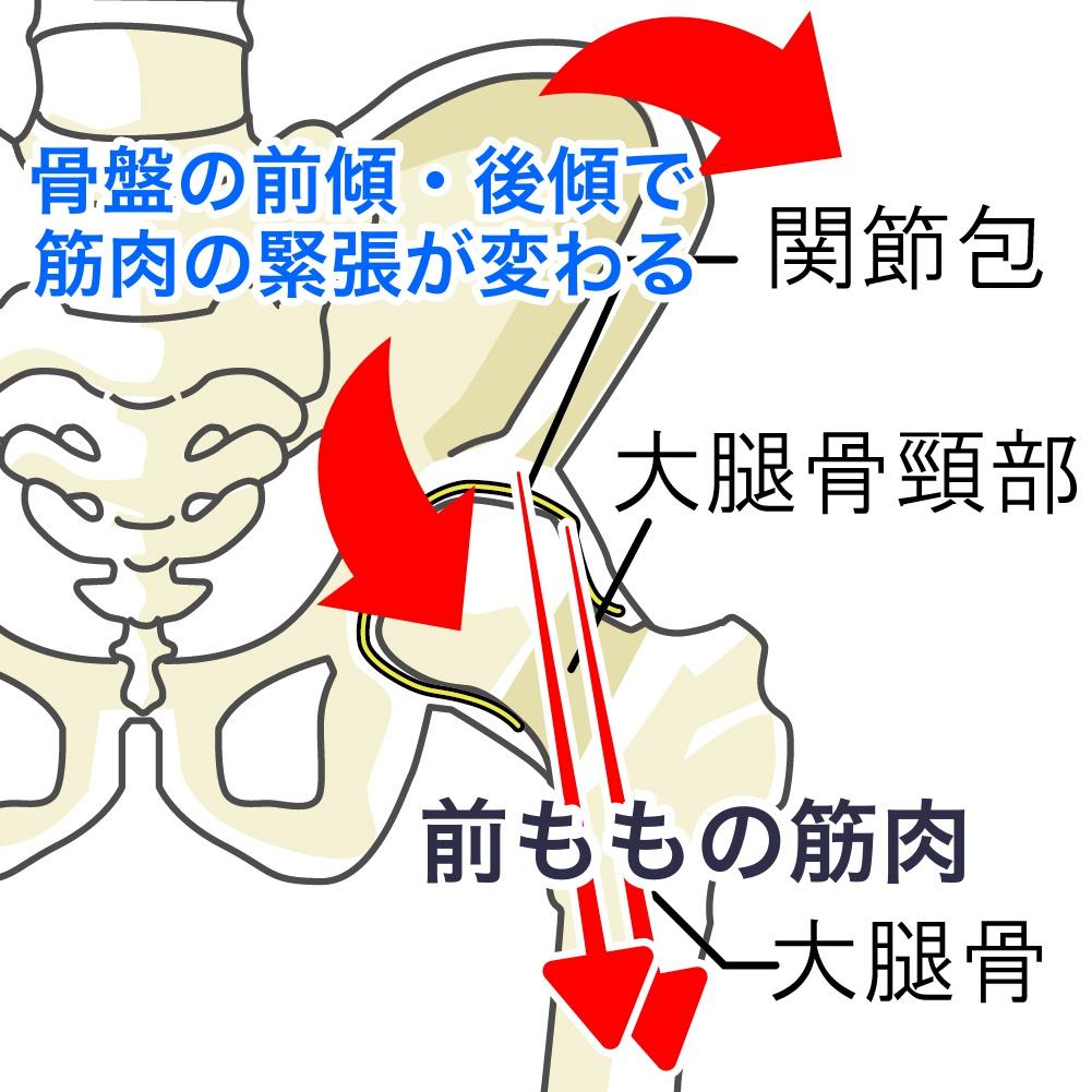 オスグットと骨盤の傾き